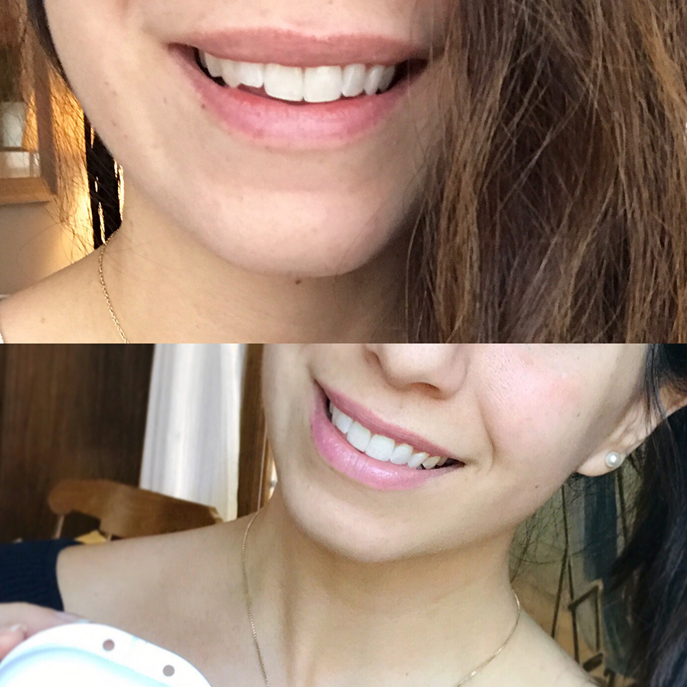 Before and after photo!